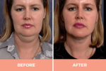 neck liposuction Sydney.jpg