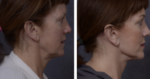 neck lift Sydney.png